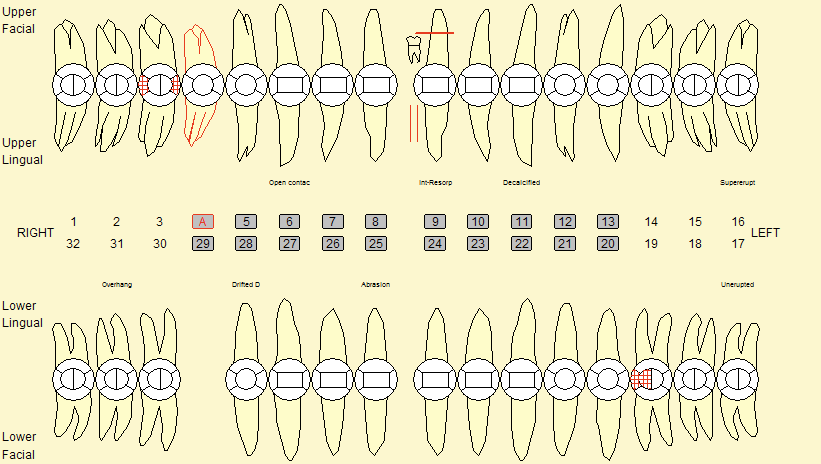 Tooth Charting Symbols Mersnoforum